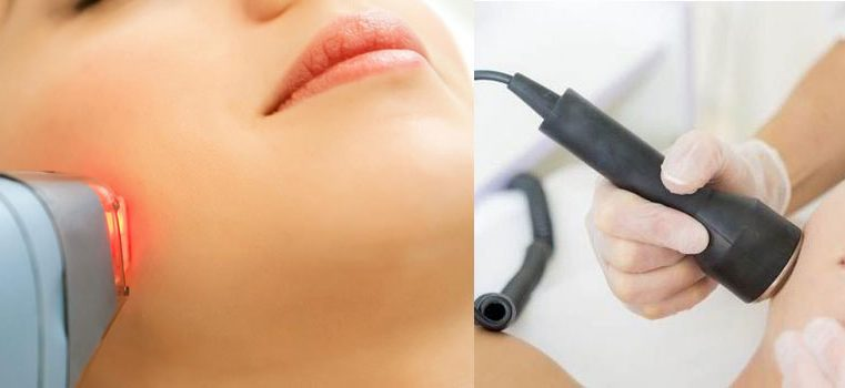 Here Are Various Types of Laser Treatments
